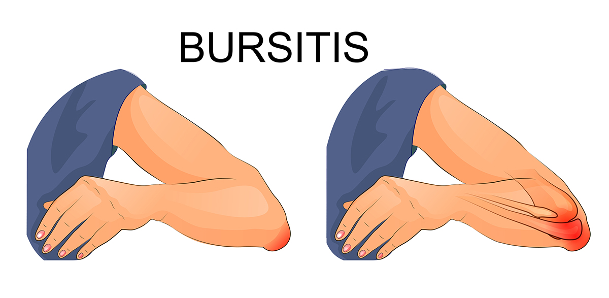 Graphic depiction of bursitis inflamed painful elbow of man